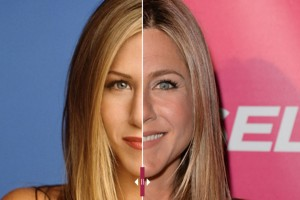 Jennifer Aniston Botox Injection
